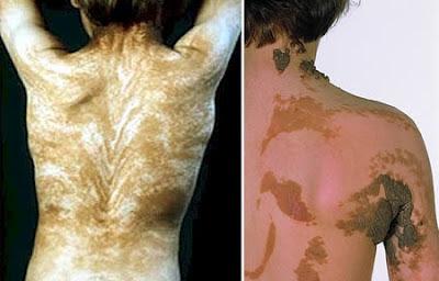 enfermedades extrañas, raras, lineas de blaschko, enfermedades de la piel