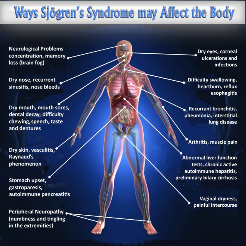 Viral Infection Link To Sjogren S Syndrome: Many Symptoms Of Sjogren's Syndrome Are Neuropathic
