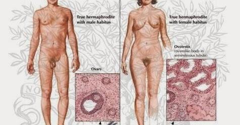 hemafrodite