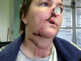 four legged friends and enemies woman disfigured by pit