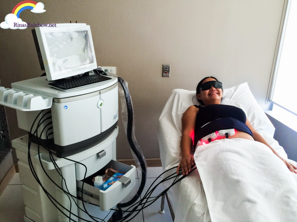 i.Lipo treatment