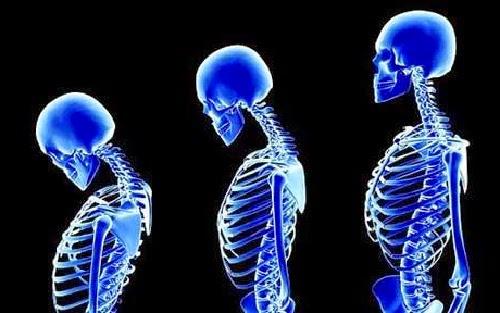 Makanan Sehat untuk Penderita Osteoporosis
