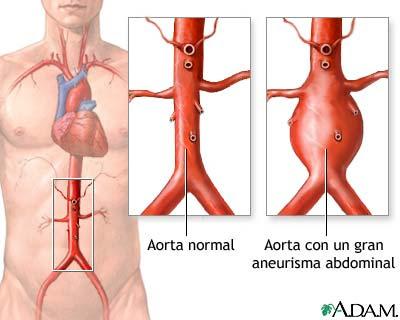 sarang semut aneurisma aorta