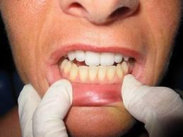 ฟันเหลืองฟอกฟันขาว