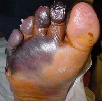 Wet gangrene | definition of wet gangrene by Medical ...