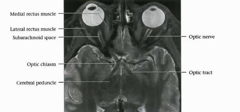 Optic Chiasm MRI Anatomy | Radiology Anatomy Images