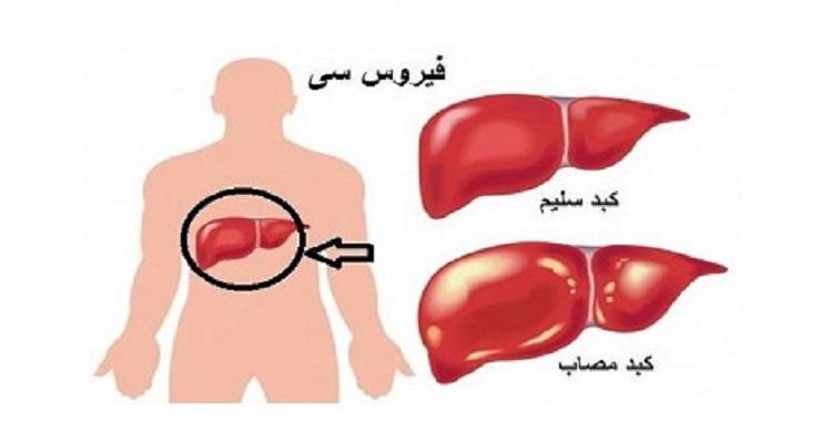 اعراض إذا ظهرت عليك فأنت مصاب بـ فيروس C