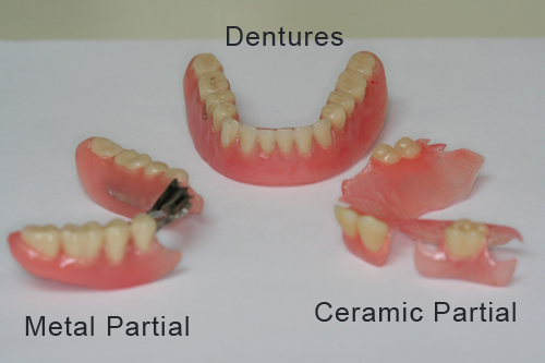 Cost of teeth removal and dentures