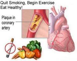 New Penyakit Jantung dan Kolestrol