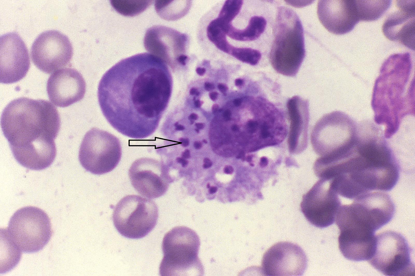 Leishmania trong tế bào máu