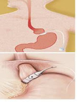 affordable lap band surgery overseas