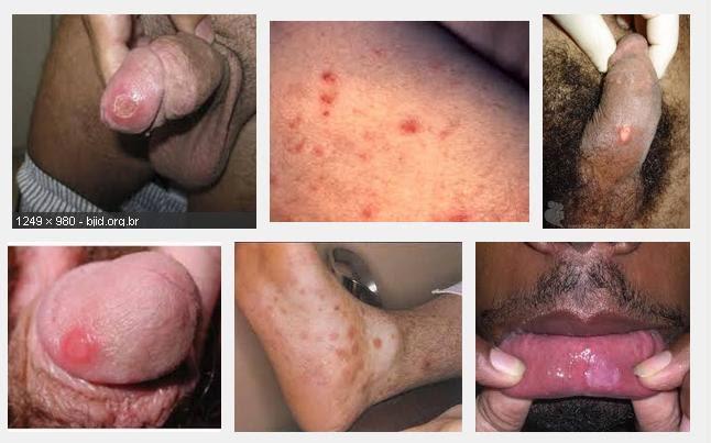 Sifilis Pria