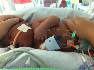 Doctors 'freeze' baby