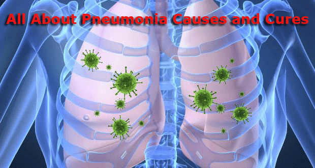 All About Pneumonia Causes and Cures