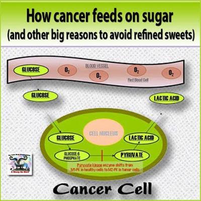 http://4.bp.blogspot.com/-3VXttEt46Tc/UNcQVAmGayI/AAAAAAAAOCE/M2bUewT4gqs/s400/Sugar%2Bcancer%2Bcells.jpg