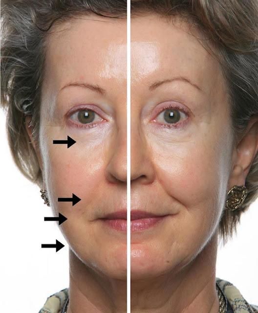 rejuvencimiento facial