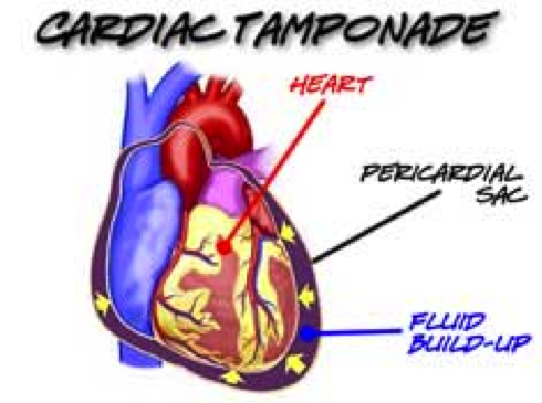 Image result for cardiac tamponade