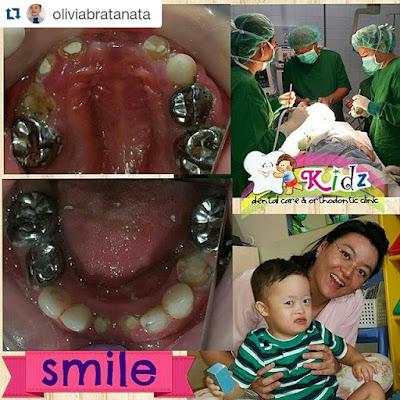 Perawatan Gigi dengan Bius Umum