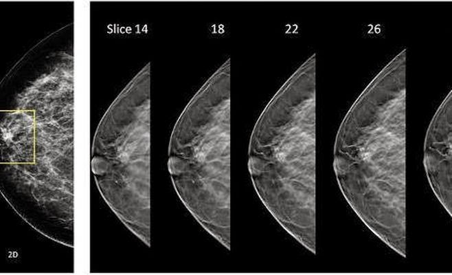 general electric tomosynthesis Introduction digital breast tomosynthesis (dbt) has recently emerged as a potential new tool  images were taken on a ge tomosynthesis prototype unit (1.