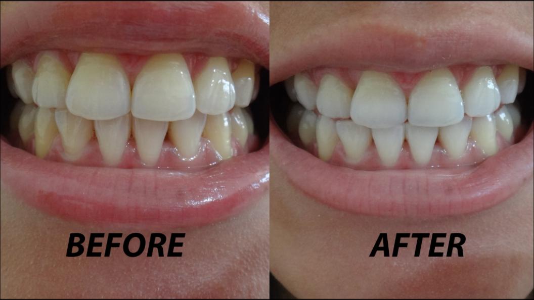 Перед лазерным отбеливанием зубов