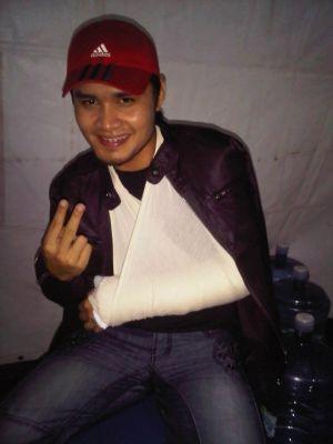 Gambar Shahir AF8 Retak Tulang Tangan
