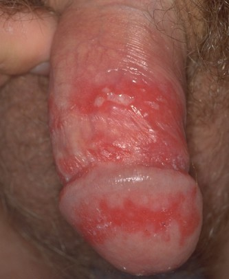 there is no cure for the herpes simplex virus and treatment is not ...