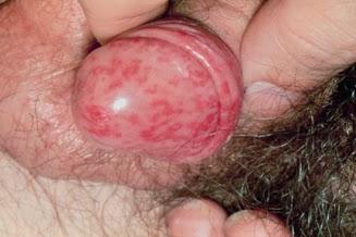 Penyakit Herpes Genital