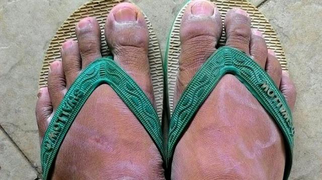 Nich Bahaya Memakai Sandal Jepit  Yang Perlu Kamu Tahu!