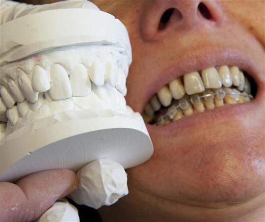 soins orthodontique pour adulte appareil orthodontique pour soins dentaire. Black Bedroom Furniture Sets. Home Design Ideas