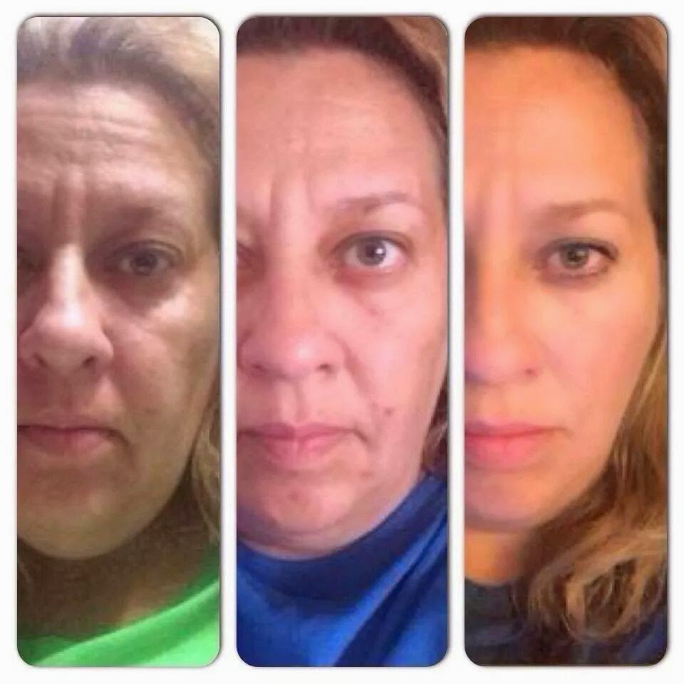 Nerium before and after 2
