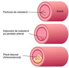 Plan complex de reglare a colesterolului