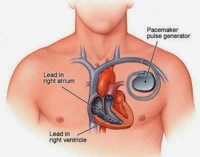 China Pacemaker Industry 2014