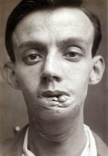 World Of Mysteries: 1920's Facial Reconstruction