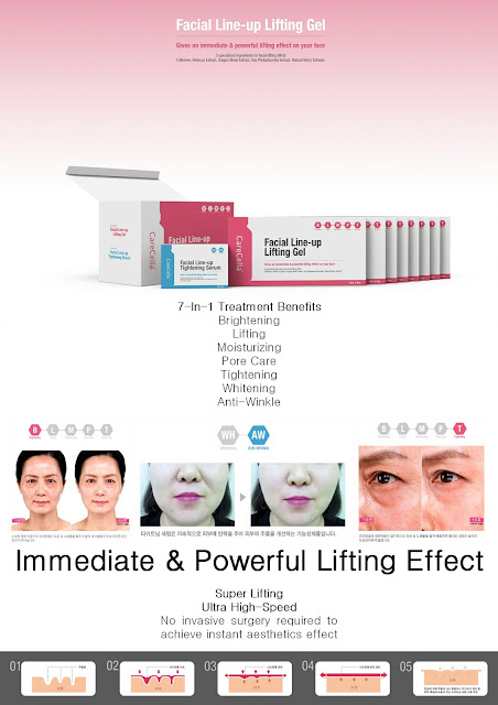 Histolift Ultra High Speed Lifting treatment review