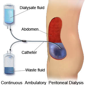 Disadvantages of Peritoneal Dialysis ( PD )