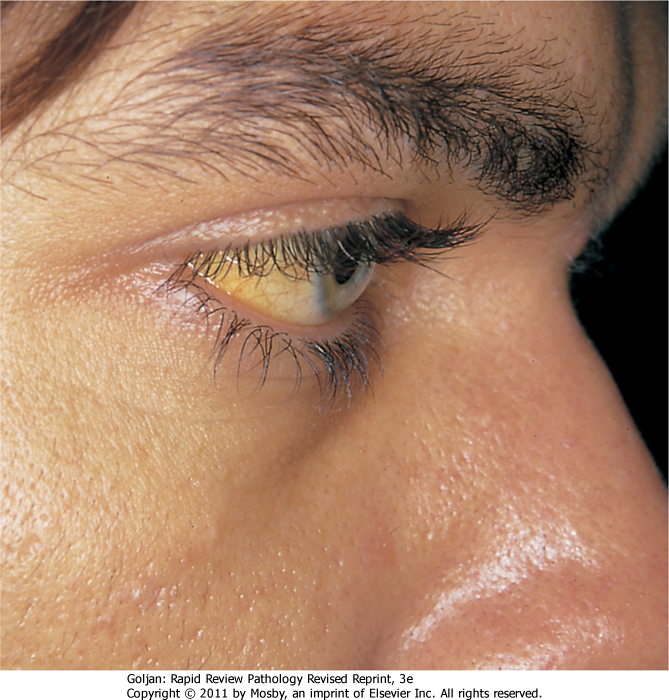 scleral icterus - Just In Time Medicine