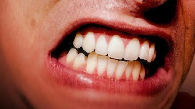 طحن الأسنان اللاإرادي