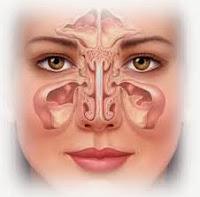 Obat Sakit Sinusitis Tradisional