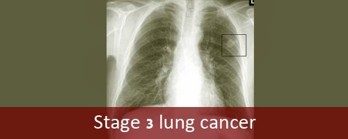lung cancer final Get the facts on lung cancer types, symptoms, causes, treatment, and stages learn about treatment options for small cell lung cancer and non-small cell lung cancer read about the life expectancy for lung cancer.