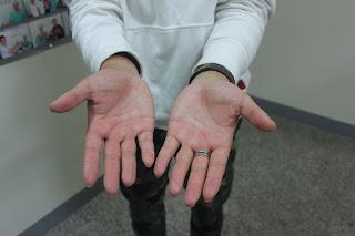 手汗治療案例
