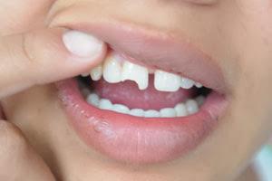 Significados de Sonhos com Dente