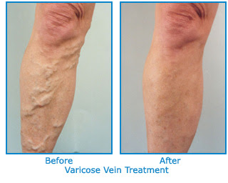 how long does sclerotherapy take