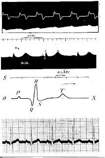 inicios de los electrocardiogramas 100