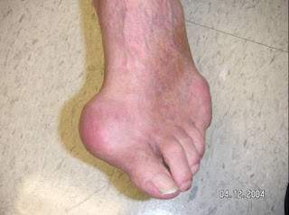 Health From Trusted Sources Gout
