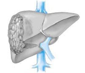 Cirrosis e neoplasia