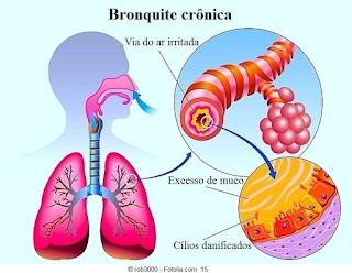 Saiba tudo sobre Bronquites