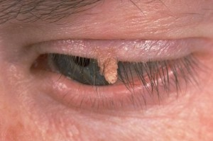 Wart On Eyelid - Doctor answers on HealthTap