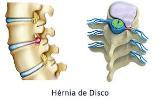 Saiba mais sobre Hérnia de Disco