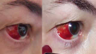 Hemorragia ocular, e agora? - Masso Vita