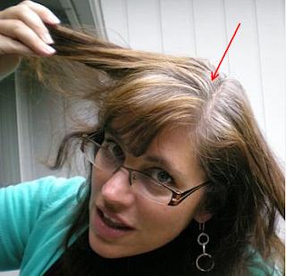 pemicu rambut cepat uban